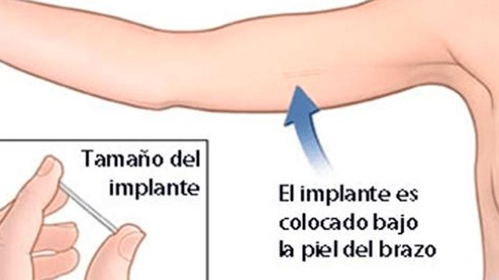 Como poner el implante anticonceptivo